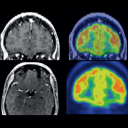 Positron Emission Tomography-Computed Tomography (PET-CT)