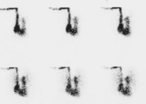 CAT angio01 1