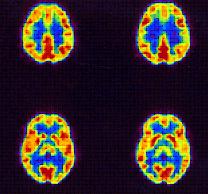 neuro-ang