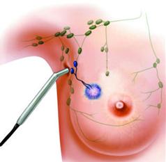 Cirurgia radioguiada